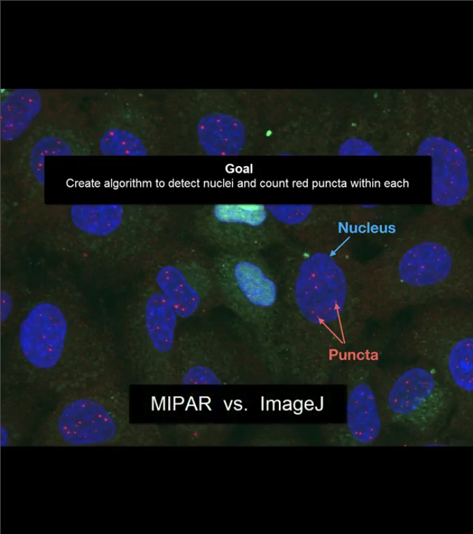 MIPAR -Image Analysis Software- | ライトストーン